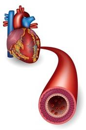 Abgedrückte Arterie im Genick - plötzlicher Kindstod